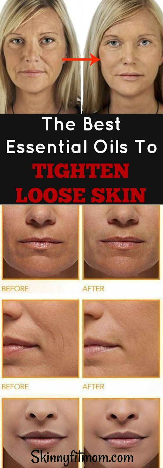 Get Rid of wrinkles and loose skin. Make your skin look years younger with these magic essential oils. #skin #tighten