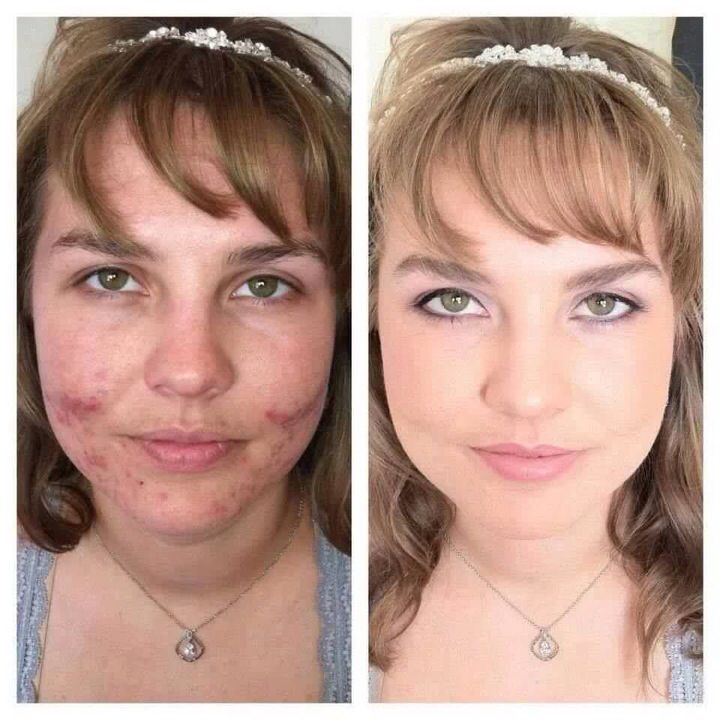 Looking for awesome makeup with great coverage!! Then look no further! Youniques Mineral Touch Cream and Powder foundations not only have amazing coverage but they actually help improve your skin with natural ingredients!! Get yours here!!   https://www.youniqueproducts.com/StellaGolding