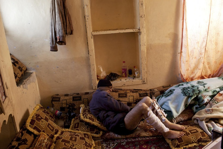 Crisis in Syria - A man with bullet wounds in both legs is forced to recover in secret at a home in Saraqib, Idlib Province, Syria, Feb. 14, 2012. The hospitals and clinics there are barely functioning and have few supplies. (Tyler Hicks/The New York Times)