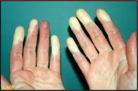 Lupus and Raynaud's Syndrome