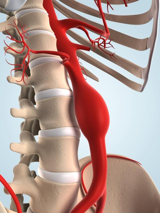 El aneurisma de aorta es una enfermedad provocada por la dilatación de una porción de una arteria. El aneurisma de la aorta torácica es el más frecuente. Te lo explicamos.