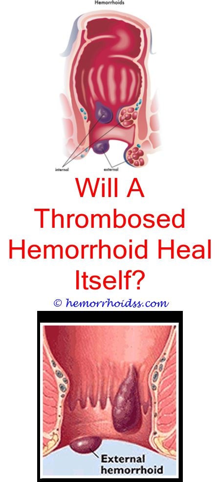 What Cures Hemorrhoids The Fastest Will My Hemorrhoid Go Away On