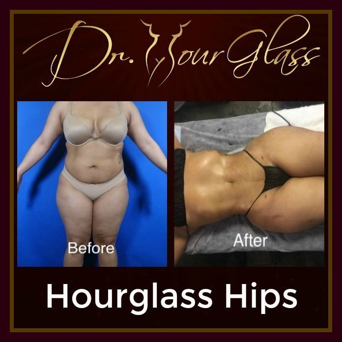 Her body looks perfect and admirable! This is because she underwent the Hourglass Hips procedure performed by none other than Dr. Hourglass. This procedure is ideal in making your abdomen flat & firm as well as making your hips wider to achieve that perfect hourglass.