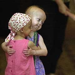 they have Progeria, and they are BEAUTIFUL