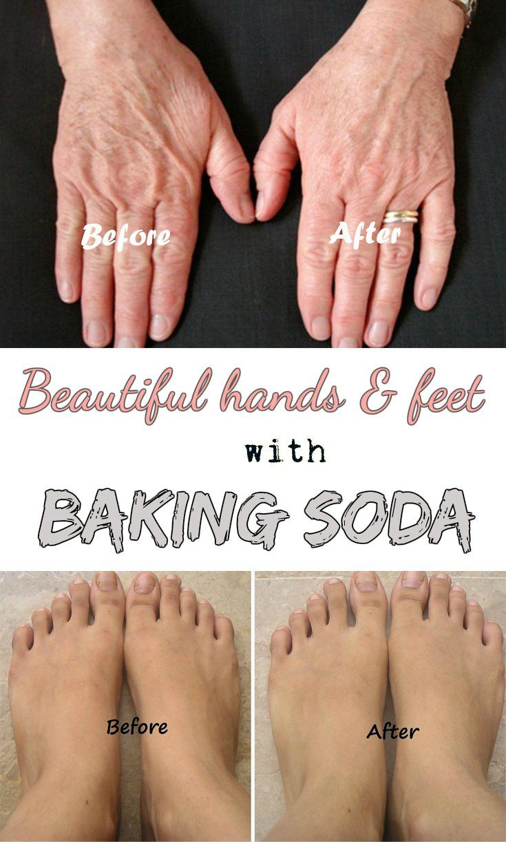 Beautiful hands and feet with baking soda.