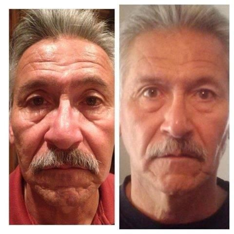 30 day money back guarantee. Please take pre pictures for objectivity! Largest un retouched photo gallery in existence and growing daily!   johnnyray.nerium.com