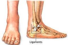torn ligament in foot