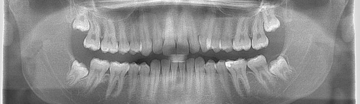 Consultation - panoramic radiography #dentist #dental treatment