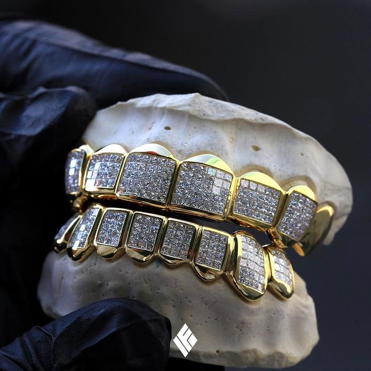 14K Yellow Gold Top And Bottom Grills Invisibly Set With VVS Princess Cut Diamonds. Custom made for @groovyq  #Grillz #CustomJewelry #IFANDCO
