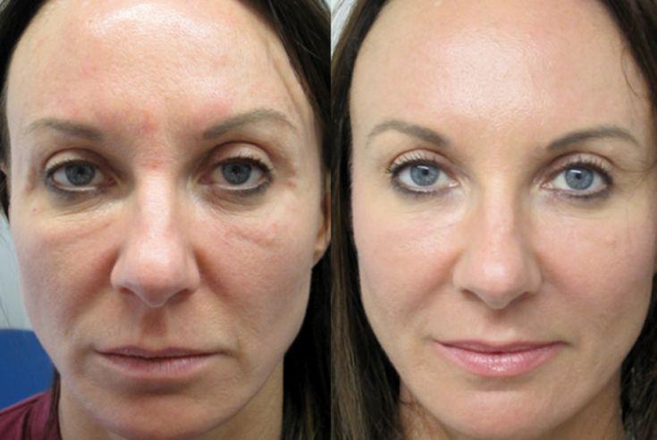 الفرق بين ابر النضاره و البلازما للوجه بشرة وشعر Skin Grafting Botox Injections Aging Signs