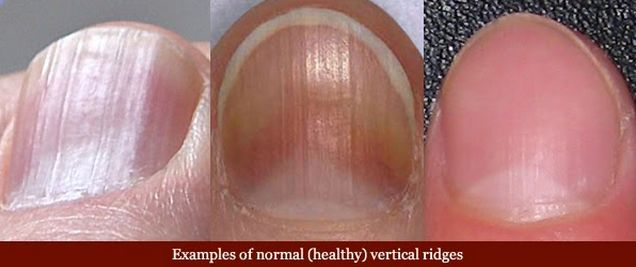 nails can be a sign of disease.   see photos and text explaining your nails appearance and how that can be a symptom of different severe diseases.