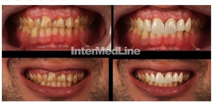 Cosmetic dental treatment Romania on Your Medical Tourism ,Facilitator Abroad - The Best Medical Tourism Solutions For You! http://www.intermedline.com/ http://www.intermedline.com/wp-content/blogs.dir/1/files/dental-treatment-abroad-dental-clinical-cases-romania/800x600_1387034856_dental_clinical_cases_-_no4_aa.jpg #dental #dentistry #dentaltourism #medicaltourism