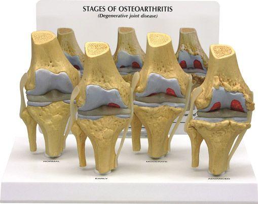 Quatro modelos coloridos do joelho, em tamanho reduzido, mostrando diferentes fases de osteoartrite. Removíveis do suporte.
