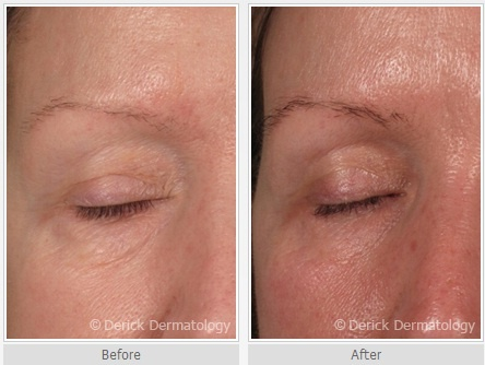 Before and After  Latisse   Latisse Hair Growth   Eyebrow Growth   Eye    Latisse Before And After