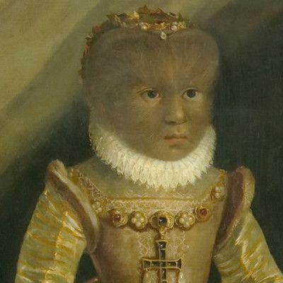 Это портрет XVI века с изображением Антуанетты Гонсалес. Как называется ее болезнь? гирсутизм.