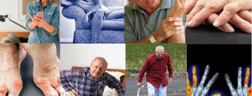 Early Signs of Rheumatoid Arthritis (RA) which should never be ignored