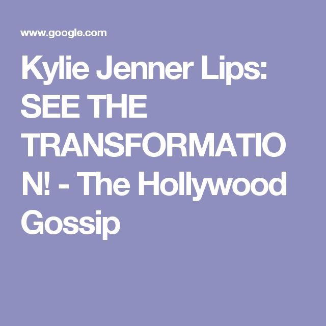 Kylie Jenner Lips: SEE THE TRANSFORMATION! - The Hollywood Gossip