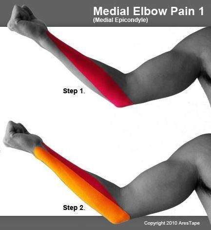 www.acupuncture-sales.com en products-mainmenu-64 15-kinesiology-tapes 115-ares-kinesiology-tapes-how-it-works 119-upper-limbs.html
