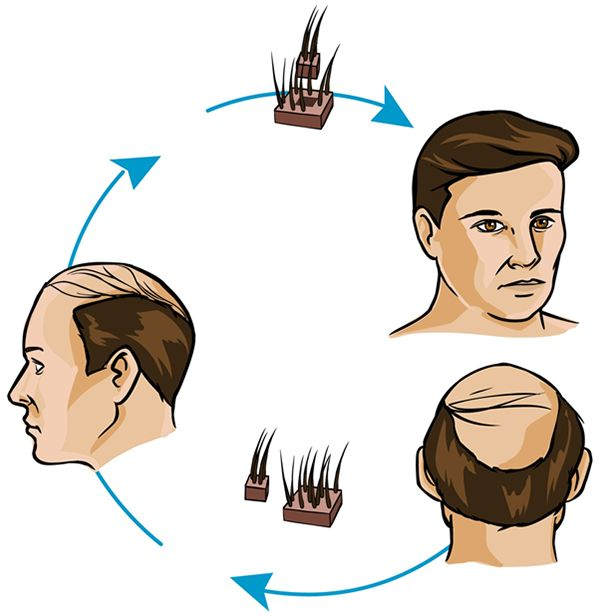 Hair Cloning – Is It Effective?
