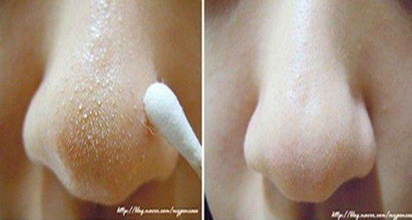 Comment faire pour éliminer les points noirs du nez et du visage : Voici le secret des hindous !