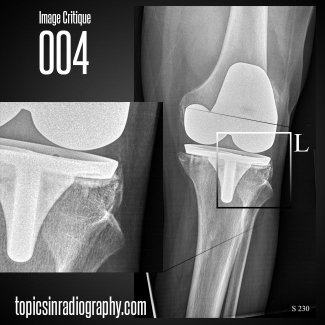 56 best radiographic positioning images on pinterest radiology radiographic image critique 004 would you repeat this ap knee compare your critique to fandeluxe Choice Image