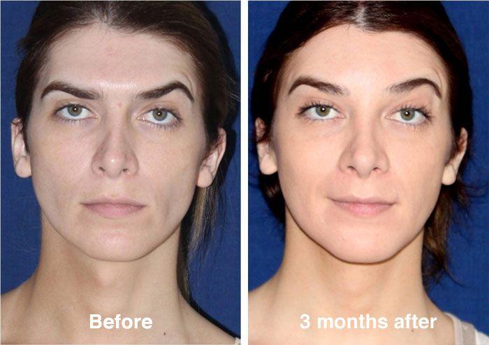 Full facial feminization surgery Dr Javier Rossi before ...