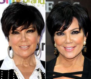 Kris Jenner Plastic Surgery Kris Jenner before and after photo