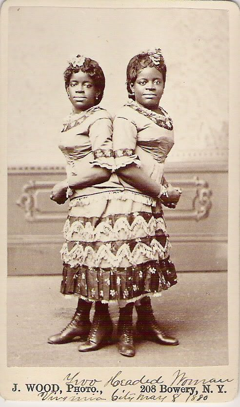 Millie and Christine McCoy, conjoined Negro twins, 1880 circus sideshow