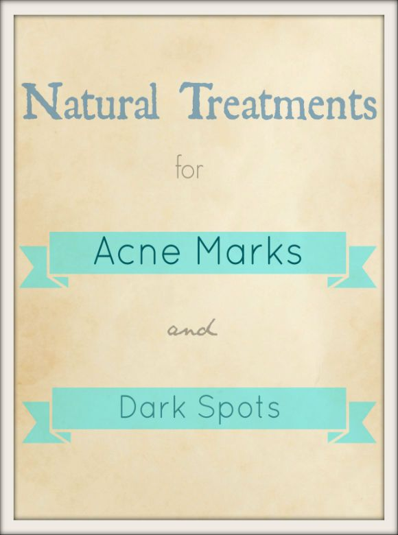 These fantastic treatments will definitely help you get rid of these acne marks or dark spots faster rather than waiting for them to fade after many months!