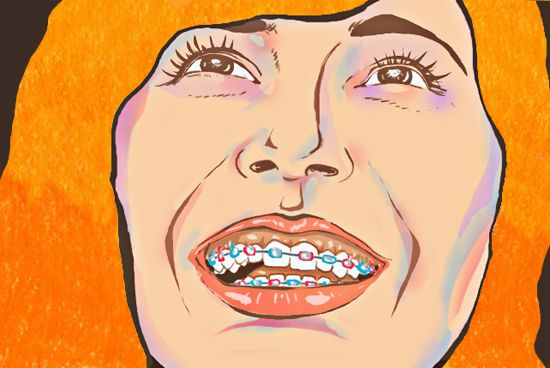 10 Things Only Those Who Wore Braces Would Understand | Humor | spot.ph