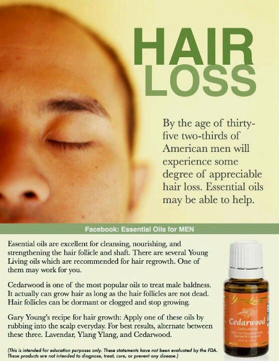 Essential oils for hair loss.