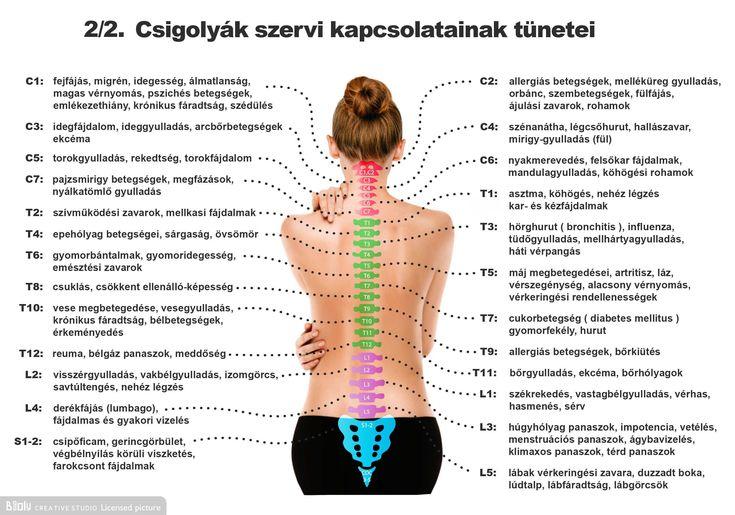 Magas vérnyomás csigolya sérvvel, A gerincsérv előjelei és kezelése - Egészség | Femina