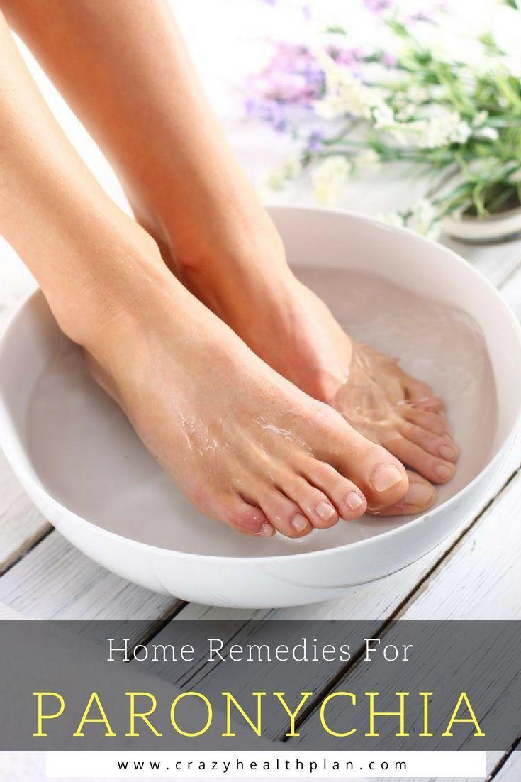 11 Home Remedies For Paronychia   Paronychia   Essential oils detox