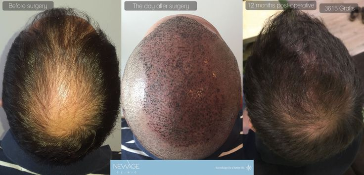Result of 12 months - 3615 Grafts FUE Hair surgery in a single session performed by Ilker Apaydın, MD    *** For more information 📲 WhatsApp: 0090543 470 47 09 ***  #HairTransplant