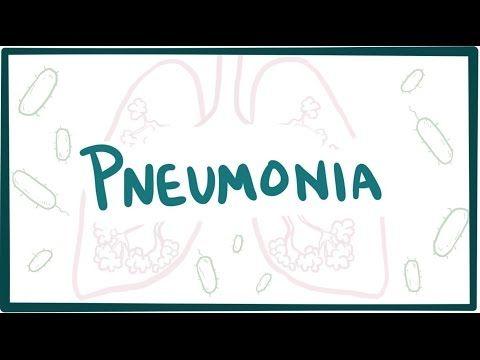 Pneumonia - causes, types, & symptoms - YouTube