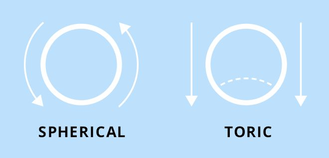 Toric contact lenses offer a solution for people with astigmatism