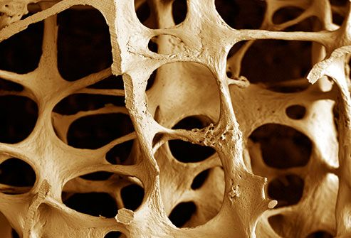 12+ Short term prednisone and osteoporosis information