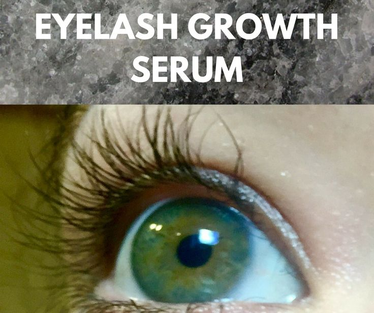 Eyelash growth, grow eyelashes, eyelash serum, long lashes, eyelash growth serum, lash serum, lash growth serum, best eyelash growth serum, long eyelashes, eyelash conditioner, natural eyelash growth, eyelash grow back, natural eyelashes, grow lashes, make eyelashes grow, eyelashes grow, eyelash enhancer, eyelashes, idol lash review, idol lash reviews, idol lash eyelash enhancer growth serum, idol lashes review