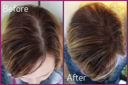 4 Natural Ways To Regrow Hair In 10 Days, Losing your hair can be a nightmare. #HairTreatment #GrowHair