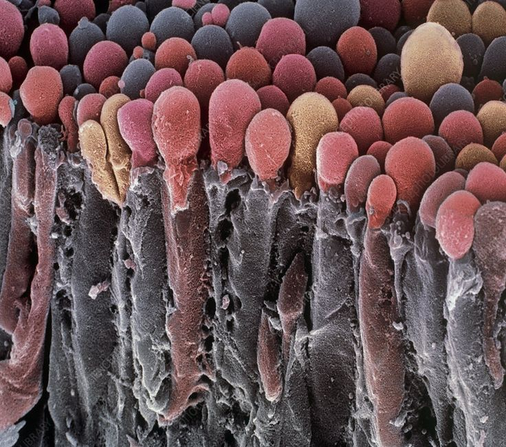 Choroid plexus secretory cells, SEM – Stock Image – P330/0321 – Science Photo Li… – رانسي الرويلي