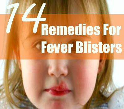 14 Home Remedies For Fever Blisters
