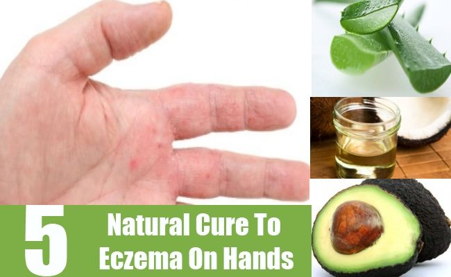 Natural Ways To Treat Eczema In Babies