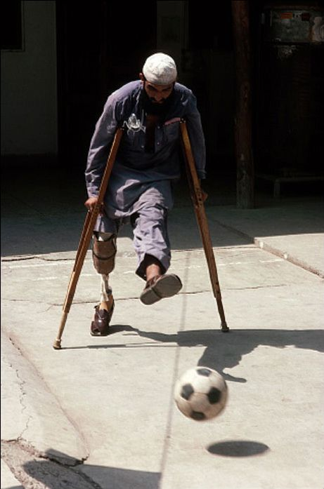Afghan amputee, a victim of a land mine, kicks a soccer ball in a refugee rehabilitation clinic, Peshawar, Pakistan, 1988, by Peter Turnley | by Photo Tractatus
