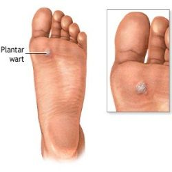 Home Remedies For Warts On Feet