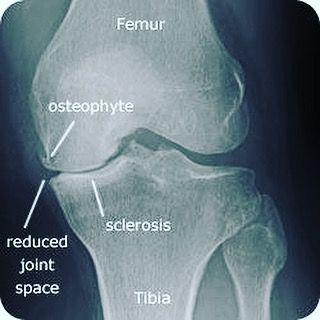 X-ray of an Osteoarthritic knee: Narrowed joint space with osteophyte formation & subchondral sclerosis..
