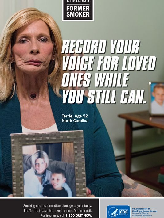 """CDC's new batch of anti-smoking advertising:  ex-smokers testify in graphic anti-smoking ads. (Terri) began lighting up as a pretty, 17-year-old, was up to two packs a day by the time she was 40 when she was diagnosed with throat cancer. Her larynx was removed. """"My grandson has never heard my real voice...I don't even remember what my own voice sounds like."""""""