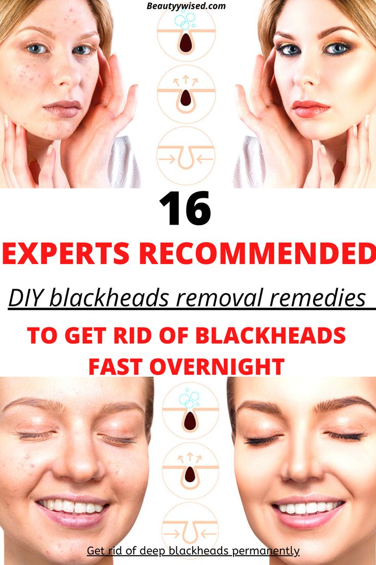 Pin on Acne treatment tips & remedies for men and women