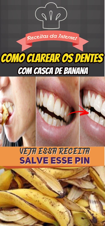 Como Clarear Os Dentes Em 2 Minutos Com Casca De Banana Aprenda