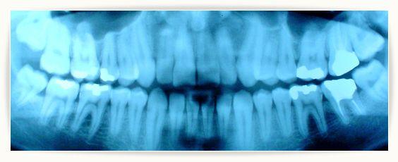 Tanie zdjęcia RTG zębów często oznaczają niską jakość i zagrożenie dla naszego zdrowia. Eksperci w Wielkiej Brytanii twierdzą, że podejrzany sprzęt...