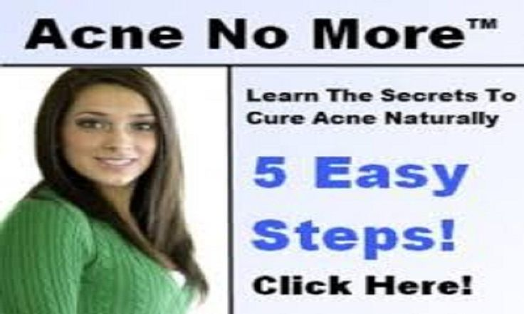 Amazon.com: Acne No More Review PDF EBook Book Free Download App - See Product Description Below for PDF Download: Appstore for Android